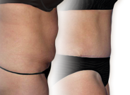 Tummy Tuck Surgery | American Board of Cosmetic Surgery