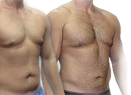 Male Breast Reduction Guide Abcs