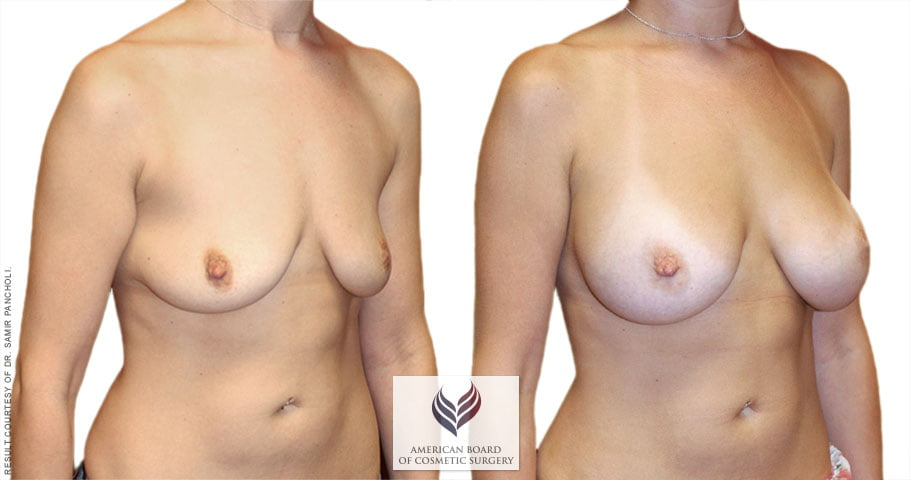 abcs-breast-augmentation-01b-pancholi