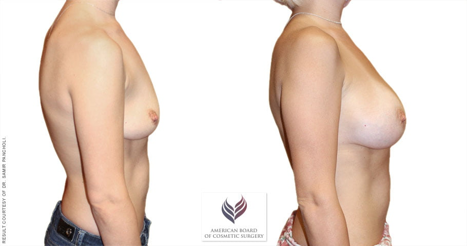 abcs-breast-augmentation-01c-pancholi
