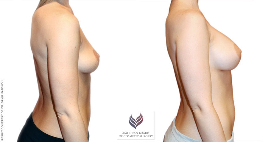 abcs-breast-augmentation-02c-pancholi