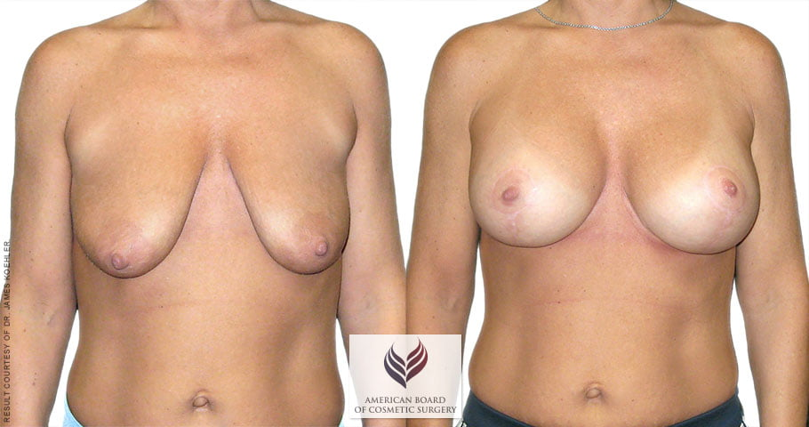 abcs-breast-lift-aug-01a-koehler