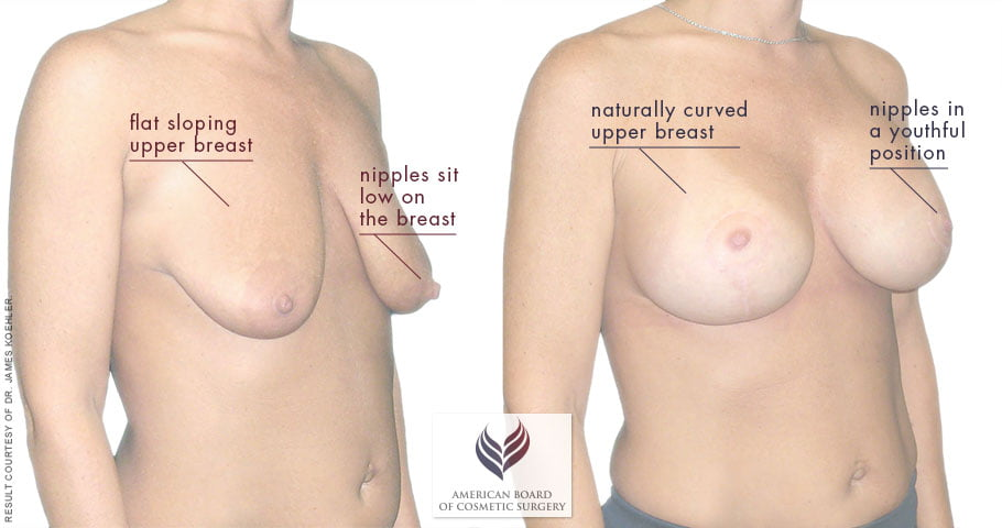 Guide To Breast Lift Surgery Abcs