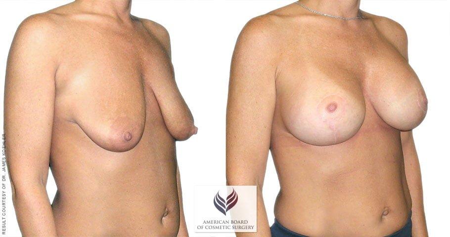 abcs-breast-lift-aug-01b-koehler