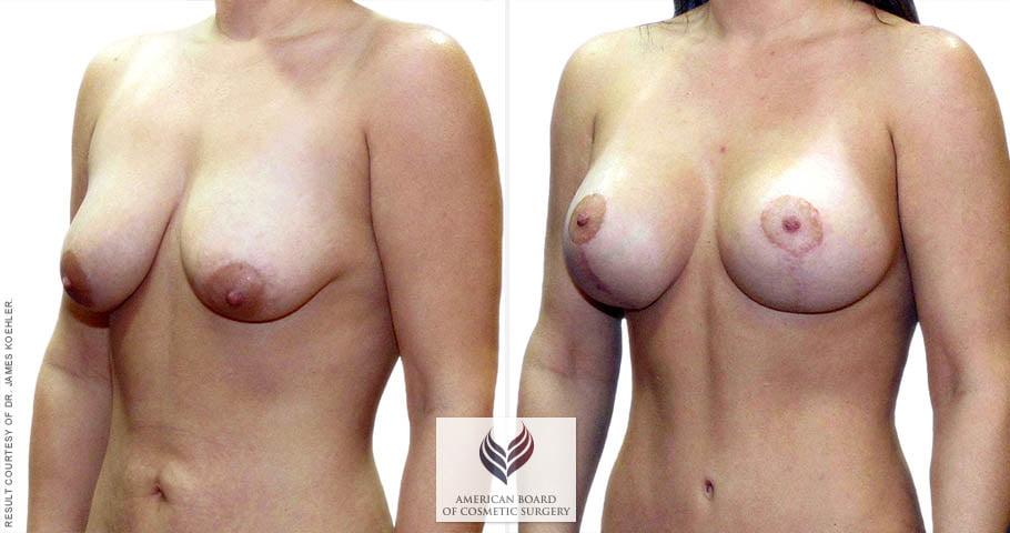 abcs-breast-lift-aug-02b-koehler