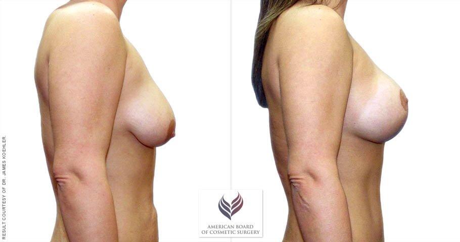 abcs-breast-lift-aug-02c-koehler
