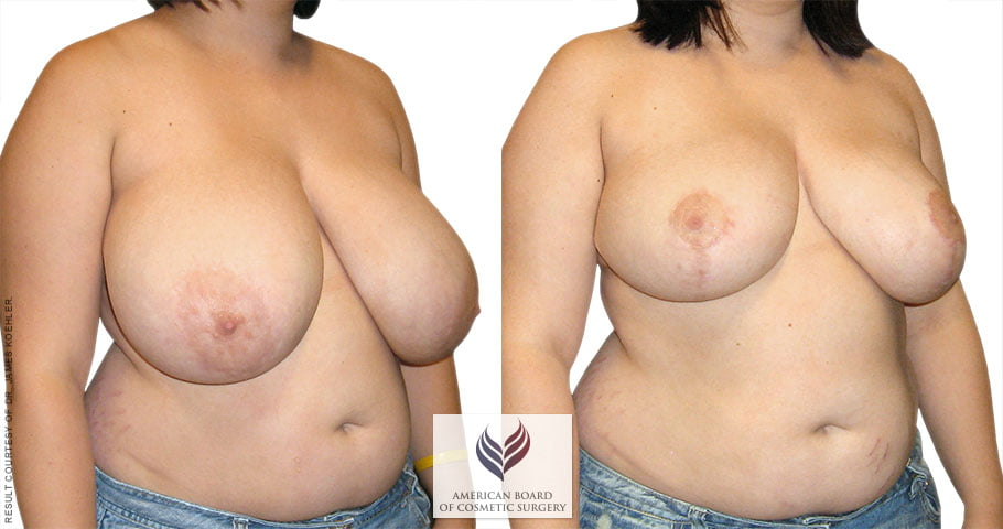 abcs-breast-reduction-01b-koehler