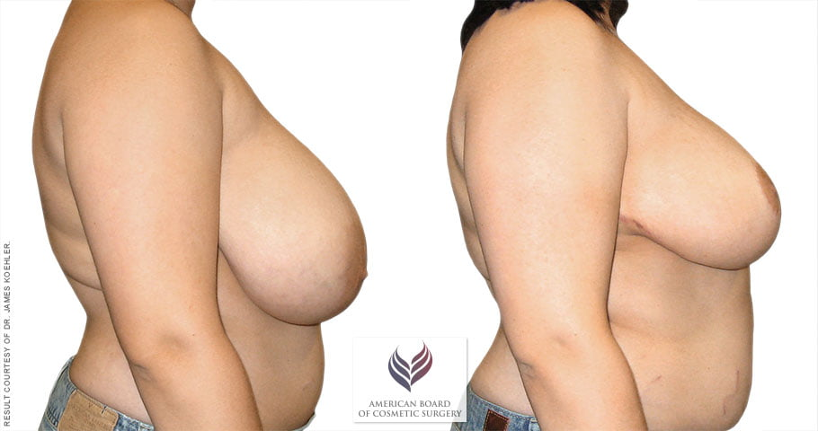 abcs-breast-reduction-01c-koehler