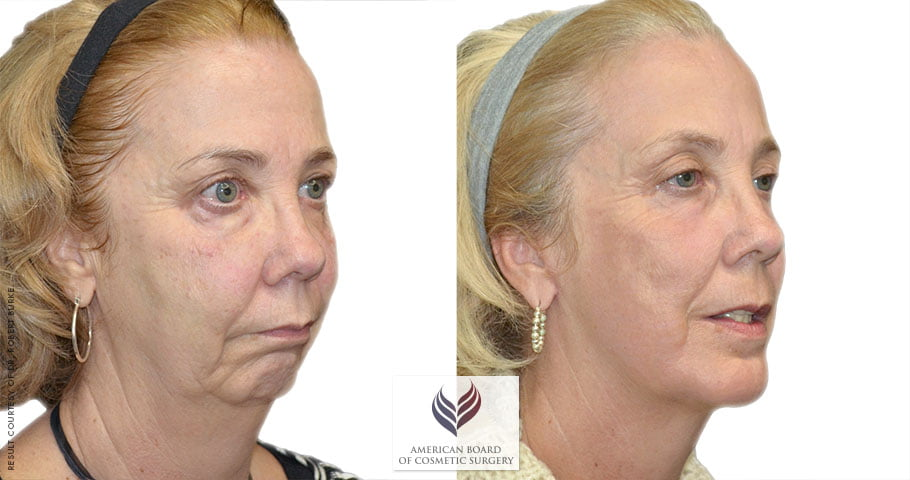 Facelift before and after, Nashville, TN board certified plastic surgeon for plastic surgery and cosmetic surgery, neck lift and face lift.