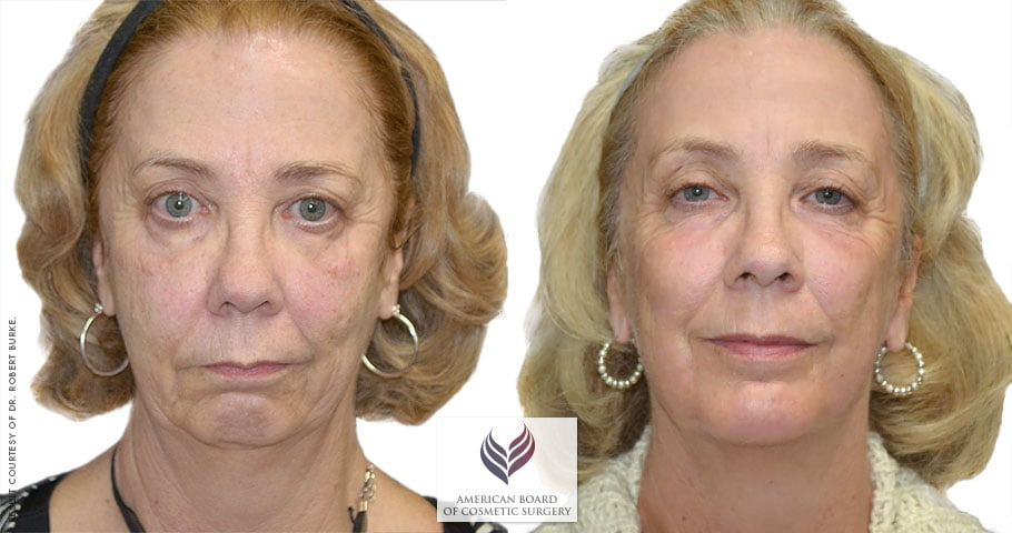 Facelift & Neck Contouring