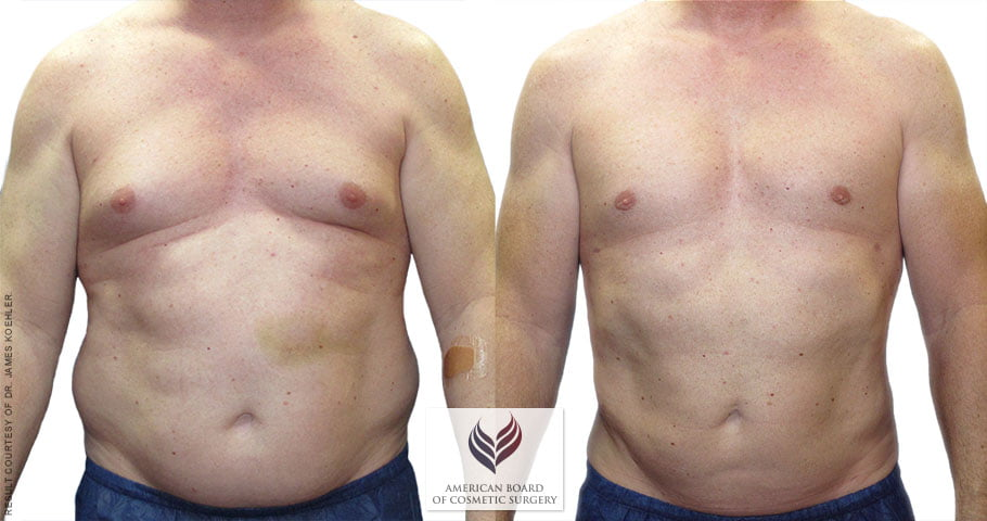 Gynecomastia & Liposuction