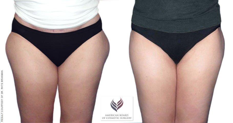 abcs-liposuction-01b-branman