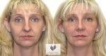 abcs-rhinoplasty-01c-koehler