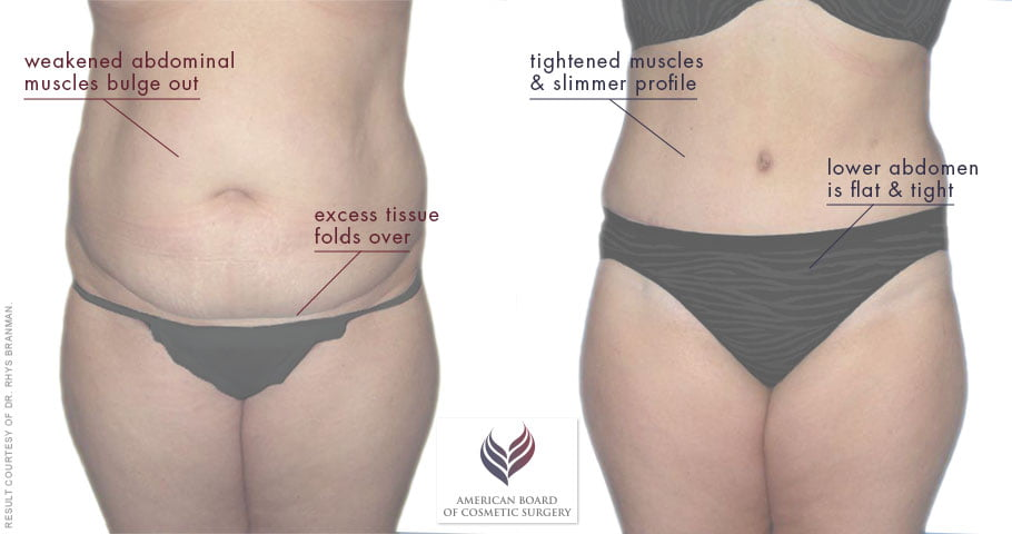 Patients with sagging skin or muscle laxity may get better results from a tummy tuck.