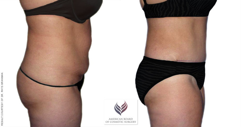 Guide To Tummy Tuck Surgery American Board Of Cosmetic Surgery