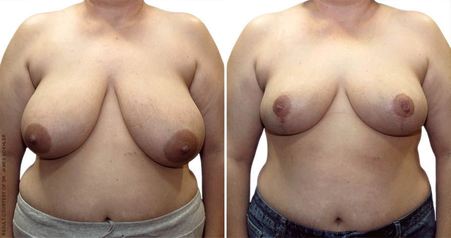 Breast Reduction 2