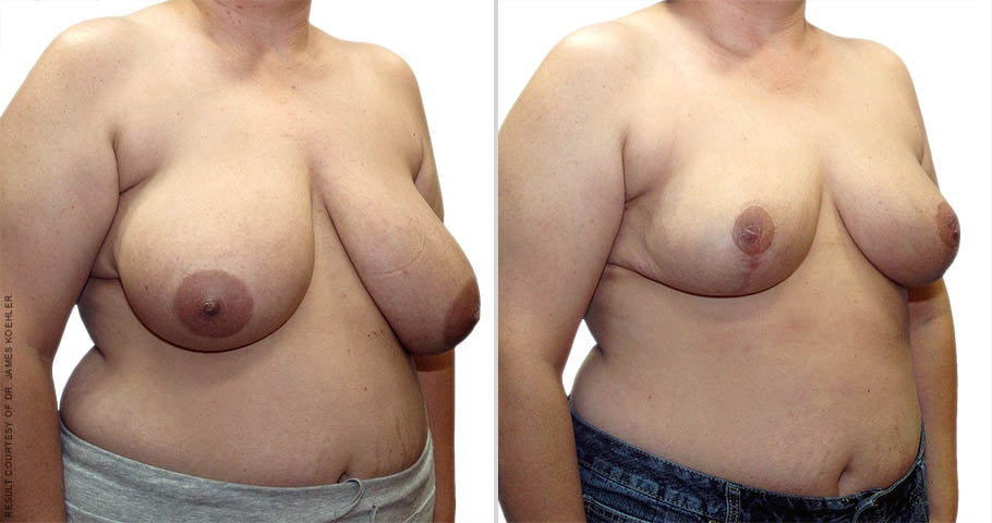 abcs-breast-reduction-02b-koehler