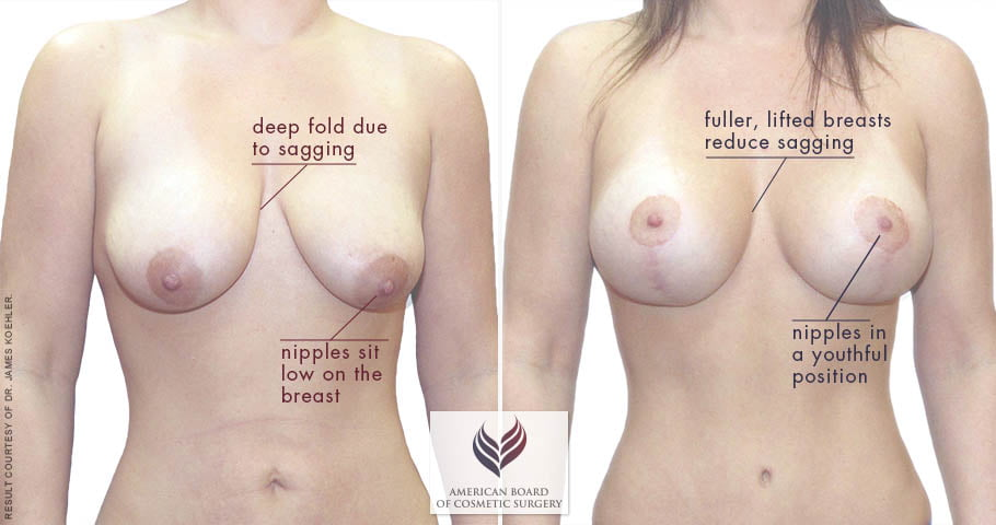 abcs-breast-lift-aug-02a-koehler-overlay
