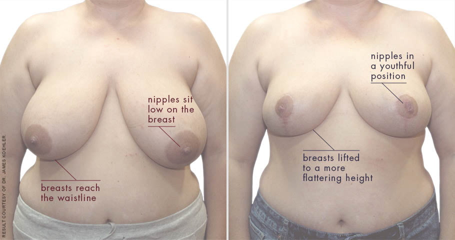abcs-breast-reduction-02a-koehler-overlay