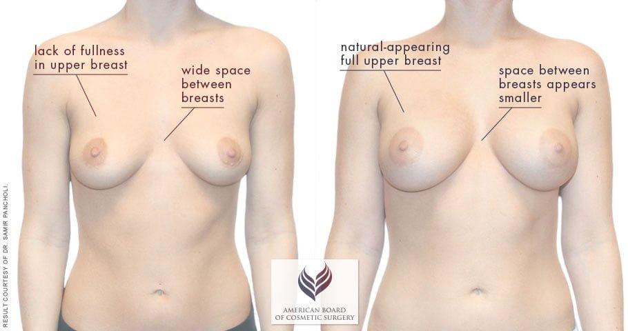 abcs-breast-augmentation-02a-pancholi-overlay