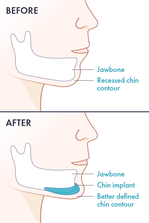chin implant diagram