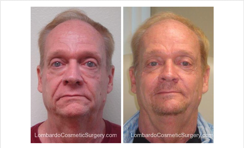 before and after male filler injections