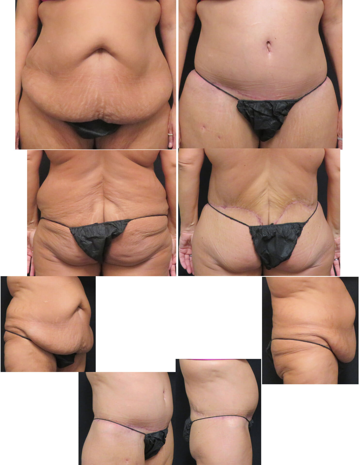 Jswetnam 914be5bdd5 American Board Of Cosmetic Surgery
